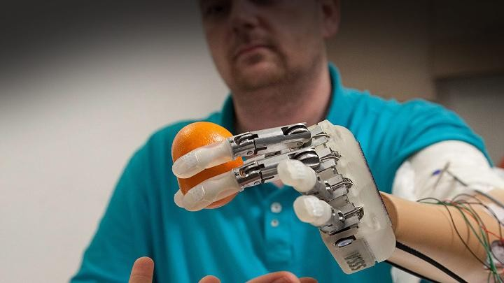 Engineering of 2014: Prosthetic limbs